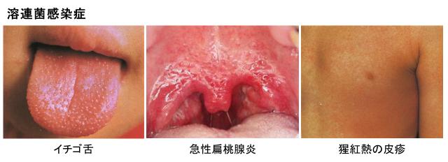 経路 溶連菌 感染