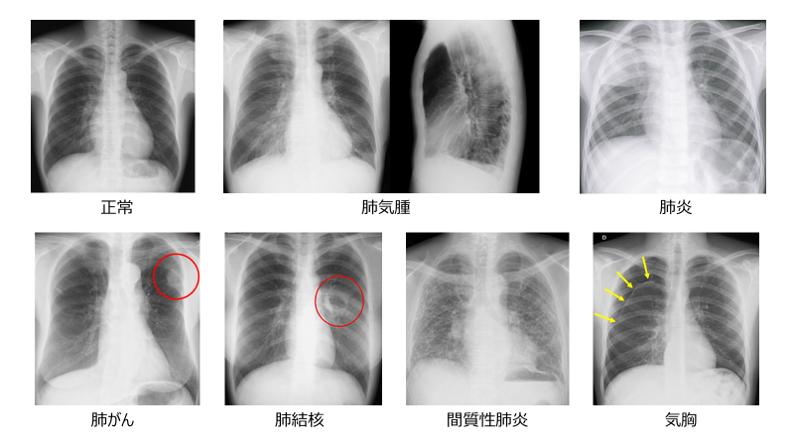 肺炎 レントゲン レントゲン写真の読み方・簡単解説